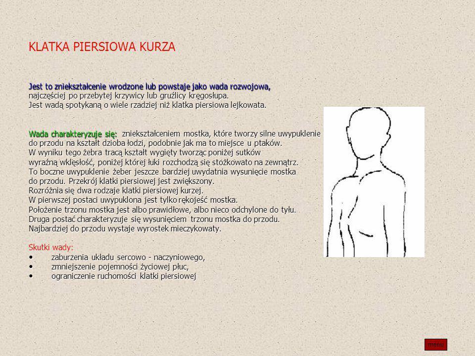 KLATKA PIERSIOWA KURZA Jest to zniekształcenie wrodzone lub powstaje jako wada rozwojowa, najczęściej po przebytej krzywicy lub gruźlicy kręgosłupa. J