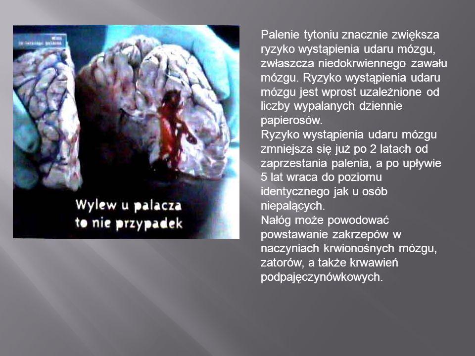 Palenie tytoniu znacznie zwiększa ryzyko wystąpienia udaru mózgu, zwłaszcza niedokrwiennego zawału mózgu. Ryzyko wystąpienia udaru mózgu jest wprost u