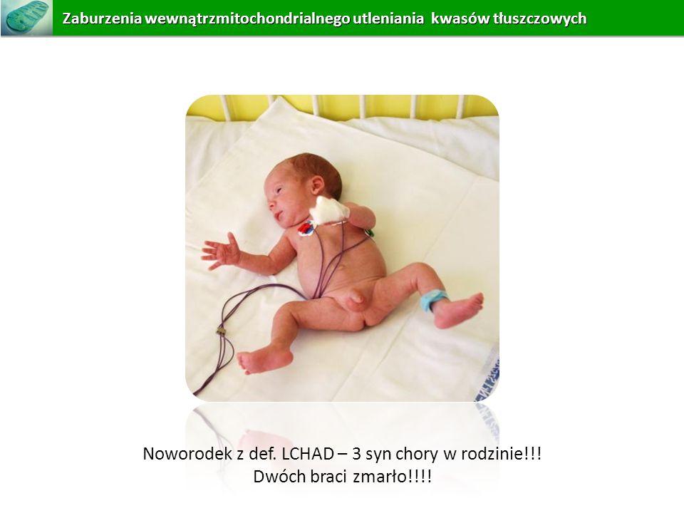 Noworodek z def. LCHAD – 3 syn chory w rodzinie!!! Dwóch braci zmarło!!!! Zaburzeniawewnątrzmitochondrialnego utleniania kwasów tłuszczowych Zaburzeni