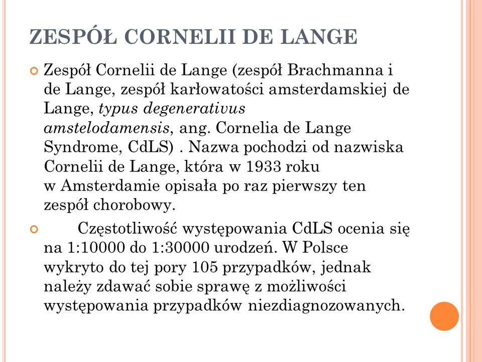 ZESPÓŁ CORNELII DE LANGE Zespół Cornelii de Lange (zespół Brachmanna i de Lange, zespół karłowatości amsterdamskiej de Lange, typus degenerativus amst