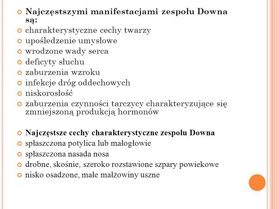 Najczęstszymi manifestacjami zespołu Downa są: charakterystyczne cechy twarzy upośledzenie umysłowe wrodzone wady serca deficyty słuchu zaburzenia wzr