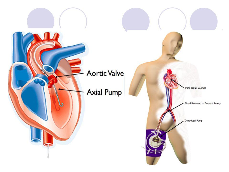 ECMO Gdy inne metody okzaują się niewystarczjące- tymczasowe zastąpienie czynności układu krążenia i/lub oddechowego Krew pacjenta jest przepompowywana przez zewnętrzny oksygenator Centralne-kaniulacja prawego przedsionka i aorty Obwodowe:kaniulacja nn.