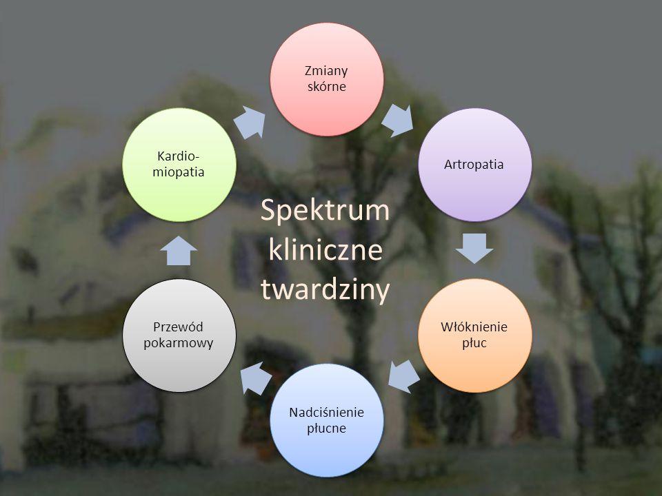 Zmiany skórne Artropatia Włóknienie płuc Nadciśnienie płucne Przewód pokarmowy Kardio- miopatia Spektrum kliniczne twardziny