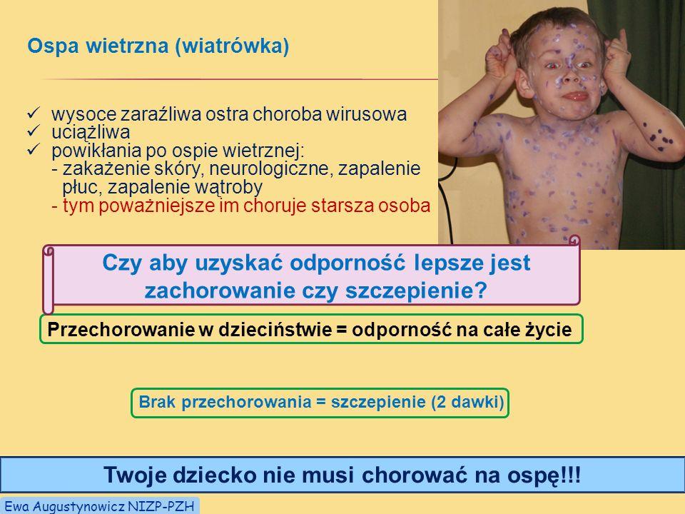 Ospa wietrzna (wiatrówka) Przechorowanie w dzieciństwie = odporność na całe życie Brak przechorowania = szczepienie (2 dawki) wysoce zaraźliwa ostra choroba wirusowa uciążliwa powikłania po ospie wietrznej: - zakażenie skóry, neurologiczne, zapalenie płuc, zapalenie wątroby - tym poważniejsze im choruje starsza osoba Twoje dziecko nie musi chorować na ospę!!.
