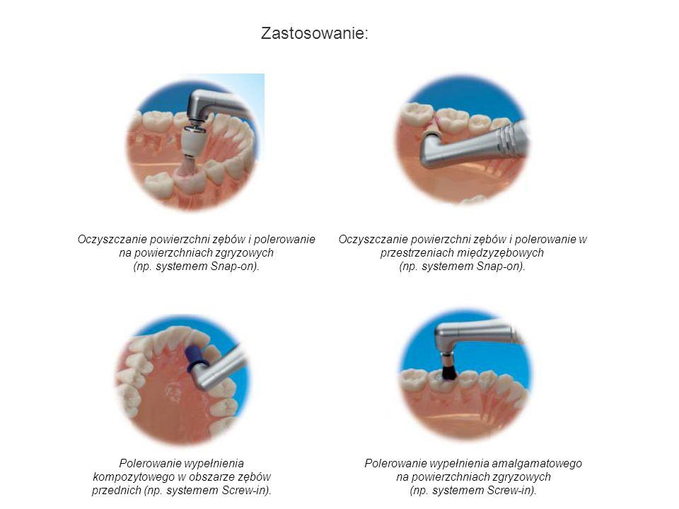 Oczyszczanie powierzchni zębów i polerowanie na powierzchniach zgryzowych (np. systemem Snap-on). Oczyszczanie powierzchni zębów i polerowanie w przes