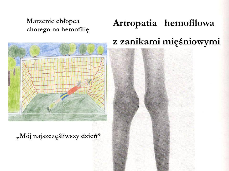 Artropatia hemofilowa z zanikami mięśniowymi Marzenie chłopca chorego na hemofilię Mój najszczęśliwszy dzień