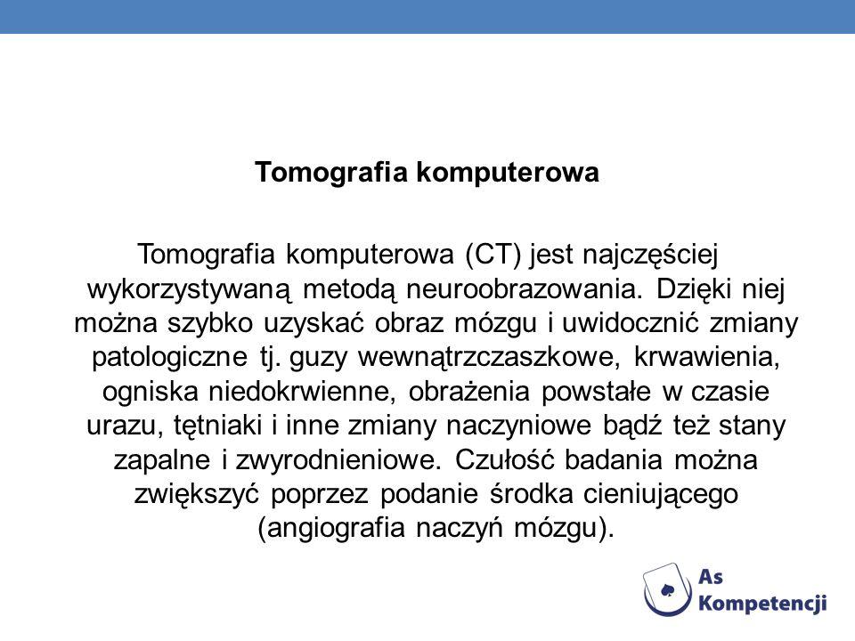 Tomografia komputerowa Tomografia komputerowa (CT) jest najczęściej wykorzystywaną metodą neuroobrazowania.