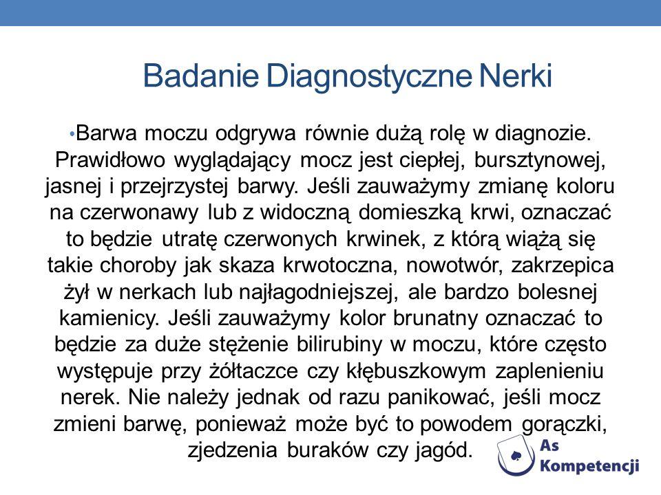 Badanie Diagnostyczne Nerki Barwa moczu odgrywa równie dużą rolę w diagnozie.