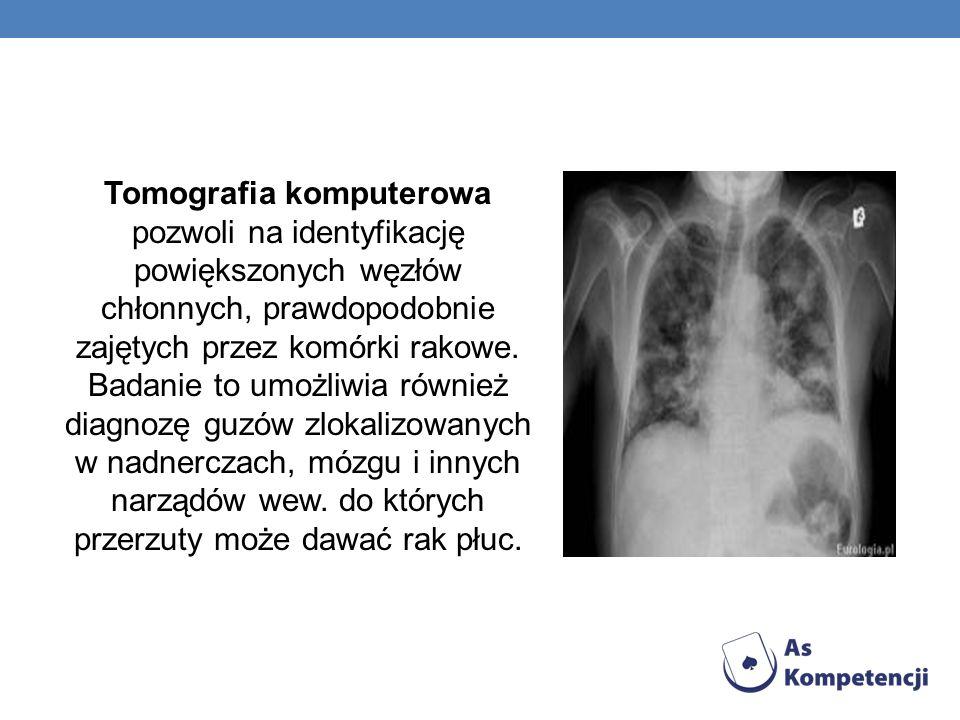 Tomografia komputerowa pozwoli na identyfikację powiększonych węzłów chłonnych, prawdopodobnie zajętych przez komórki rakowe. Badanie to umożliwia rów