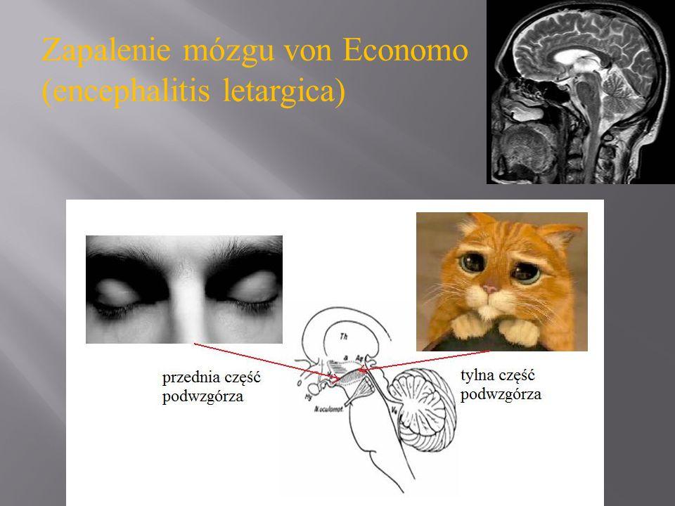 Moruzzi G, Magoun HW: Brain stem reticular formation and activation of the EEG.