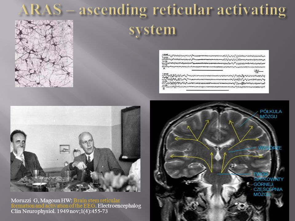 Moruzzi G, Magoun HW: Brain stem reticular formation and activation of the EEG. Electroencephalog Clin Neurophysiol. 1949 nov;1(4):455-73