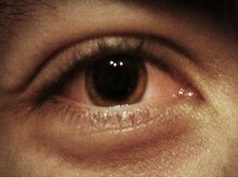 Oczy osoby nie zażywającej narkotyków Oczy osoby zażywającej narkotyki - małe źrenice Oczy osoby zażywającej narkotyki - duże źrenice