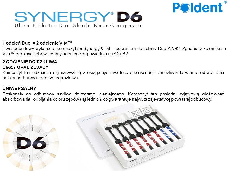 1 odcień Duo = 2 odcienie Vita Dwie odbudowy wykonane kompozytem Synergy® D6 – odcieniem do zębiny Duo A2/B2.