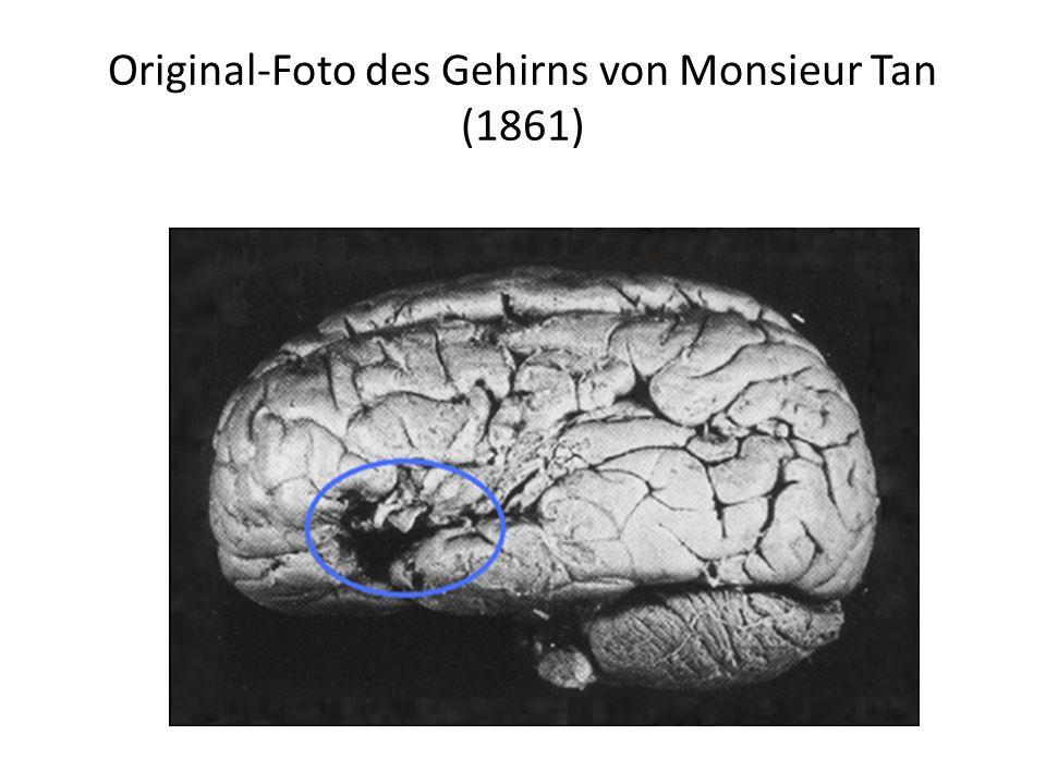 Original-Foto des Gehirns von Monsieur Tan (1861)