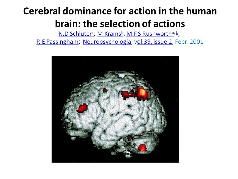 Cerebral dominance for action in the human brain: the selection of actions N.D Schluter a, M Krams b, M.F.S Rushworth a, b, R.E Passingham: Neuropsych
