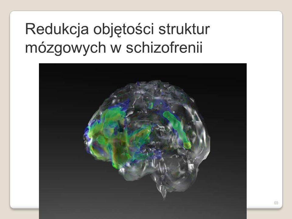 Czynniki biologiczne w etiologii schizofrenii Struktury mózgu Struktury mózgu Powiększenie komór Powiększenie komór 20-25% pacjentów ze schizofrenią 20-25% pacjentów ze schizofrenią Więcej objawów negatywnych, bardziej przewlekły przebieg Więcej objawów negatywnych, bardziej przewlekły przebieg Ale, powiększenie komór występuje w również w innych chorobach Ale, powiększenie komór występuje w również w innych chorobach 68