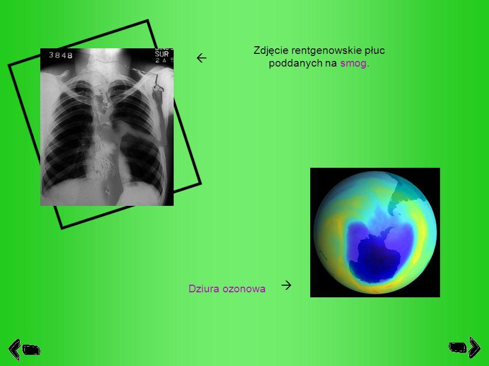 Zdjęcie rentgenowskie płuc poddanych na smog. Dziura ozonowa