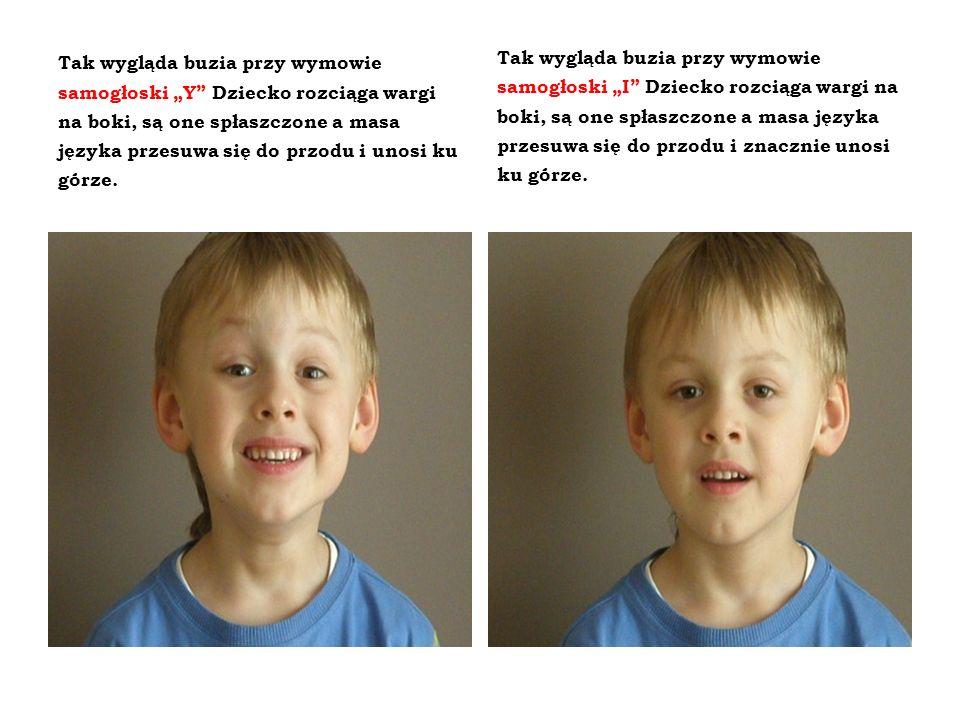 Tak wygląda buzia przy wymowie samogłoski Y Dziecko rozciąga wargi na boki, są one spłaszczone a masa języka przesuwa się do przodu i unosi ku górze.