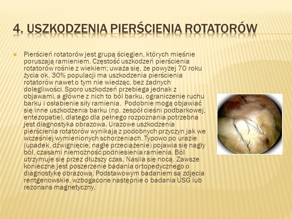 Pierścień rotatorów jest grupą ścięgien, których mięśnie poruszają ramieniem. Częstość uszkodzeń pierścienia rotatorów rośnie z wiekiem; uważa się, że