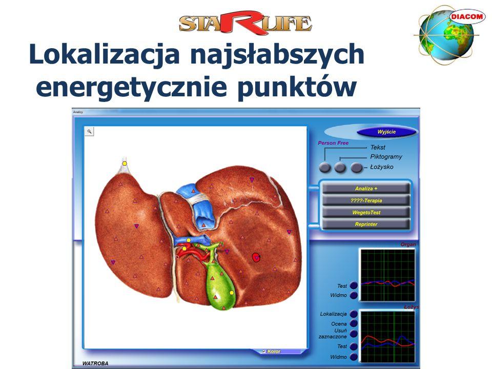 Możliwości urządzenia DIACOM Ocena stanu energetycznego narządów Wczesne wykrywanie problemów zdrowotnych Rozpoznawanie przyczyn dolegliwości Rozpoznawanie rodzaju, stopnia i tempa rozwoju choroby Tropienie pasożytów, bakterii, wirusów i innych drobnoustrojów Ocena wpływu alergenów Indywidualny dobór suplementów diety, leków alopatycznych i homeopatycznych Ocena działania suplementów diety i innych na organizm Monitorowanie postępu w procesie leczenia Wspomaganie organizmu terapiami DIACOM