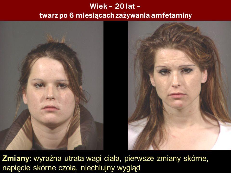 Wiek – 20 lat – twarz po 6 miesiącach zażywania amfetaminy Zmiany: wyraźna utrata wagi ciała, pierwsze zmiany skórne, napięcie skórne czoła, niechlujn