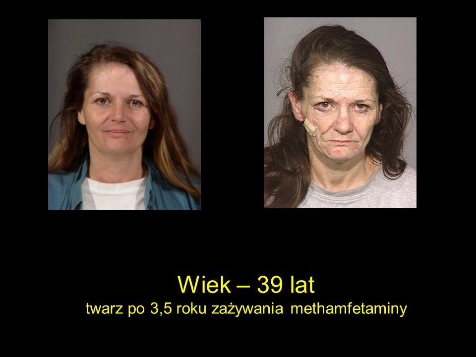 Wiek – 39 lat twarz po 3,5 roku zażywania methamfetaminy