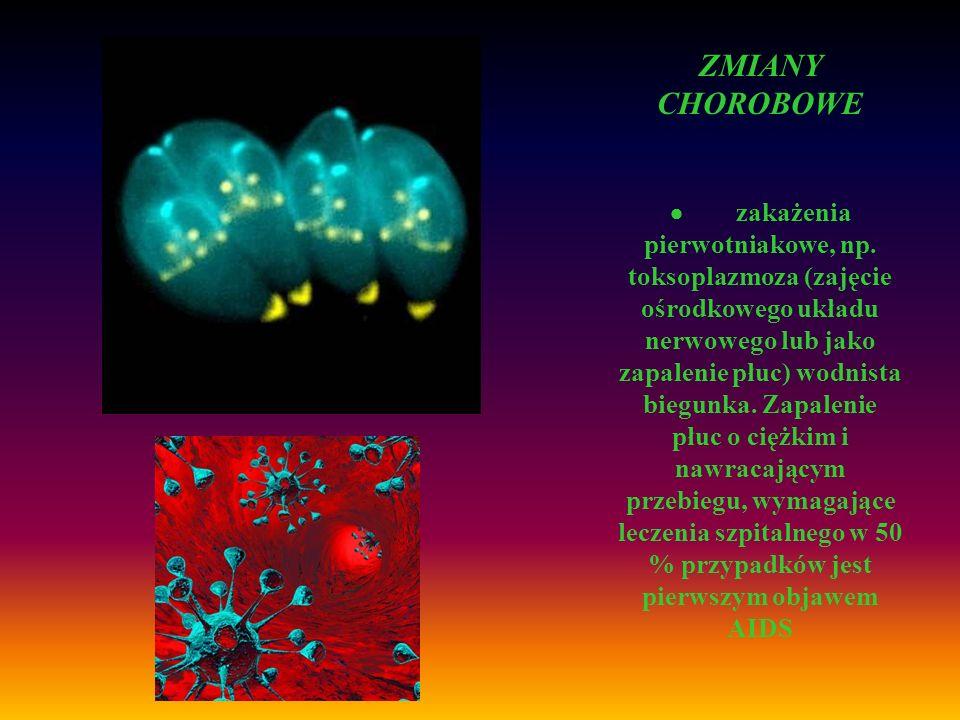ZMIANY CHOROBOWE zakażenia pierwotniakowe, np. toksoplazmoza (zajęcie ośrodkowego układu nerwowego lub jako zapalenie płuc) wodnista biegunka. Zapalen