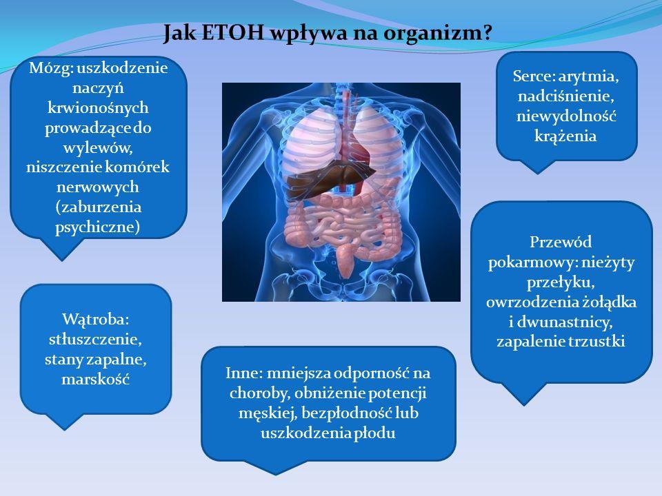 Jak ETOH wpływa na organizm? Serce: arytmia, nadciśnienie, niewydolność krążenia Mózg: uszkodzenie naczyń krwionośnych prowadzące do wylewów, niszczen