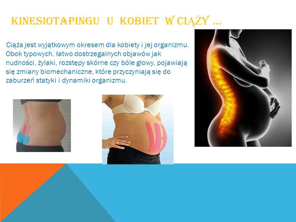 KINESIOTAPINGU U KOBIET W CI ĄŻ Y … Ciąża jest wyjątkowym okresem dla kobiety i jej organizmu. Obok typowych, łatwo dostrzegalnych objawów jak nudnośc
