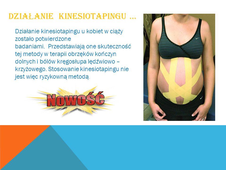 DZIA Ł ANIE KINESIOTAPINGU … Działanie kinesiotapingu u kobiet w ciąży zostało potwierdzone badaniami. Przedstawiają one skuteczność tej metody w tera