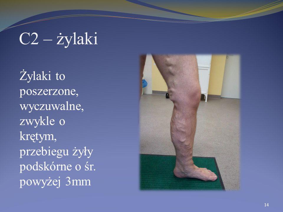 C2 – żylaki Żylaki to poszerzone, wyczuwalne, zwykle o krętym, przebiegu żyły podskórne o śr. powyżej 3mm 14