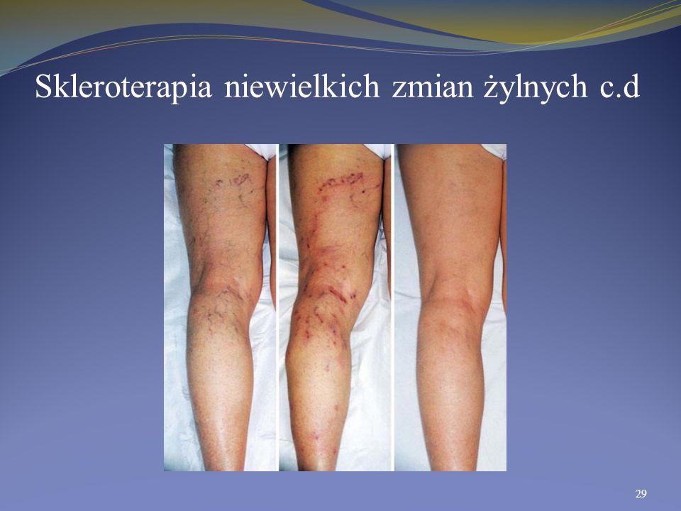 Skleroterapia niewielkich zmian żylnych c.d 29