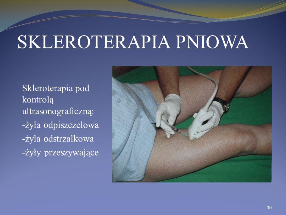 SKLEROTERAPIA PNIOWA Skleroterapia pod kontrolą ultrasonograficzną: -żyła odpiszczelowa -żyła odstrzałkowa -żyły przeszywające 30