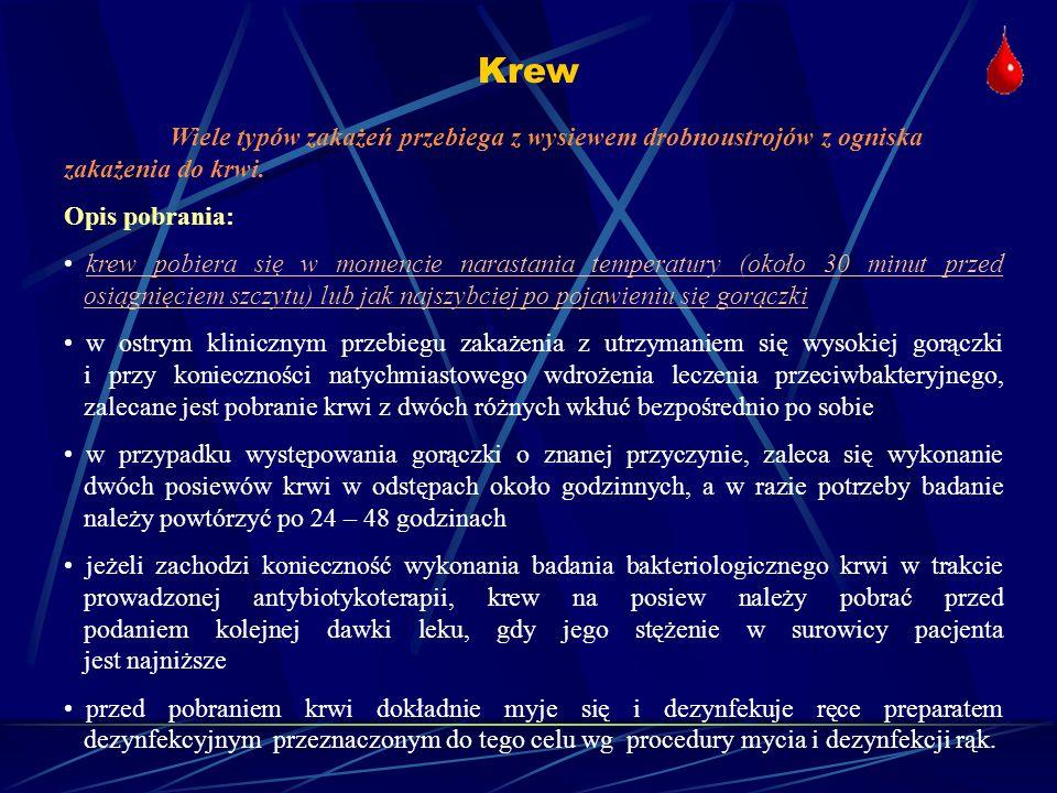 Oporność mikrobiologiczna i epidemiologiczne wartości graniczne Szczep dziki (ang.