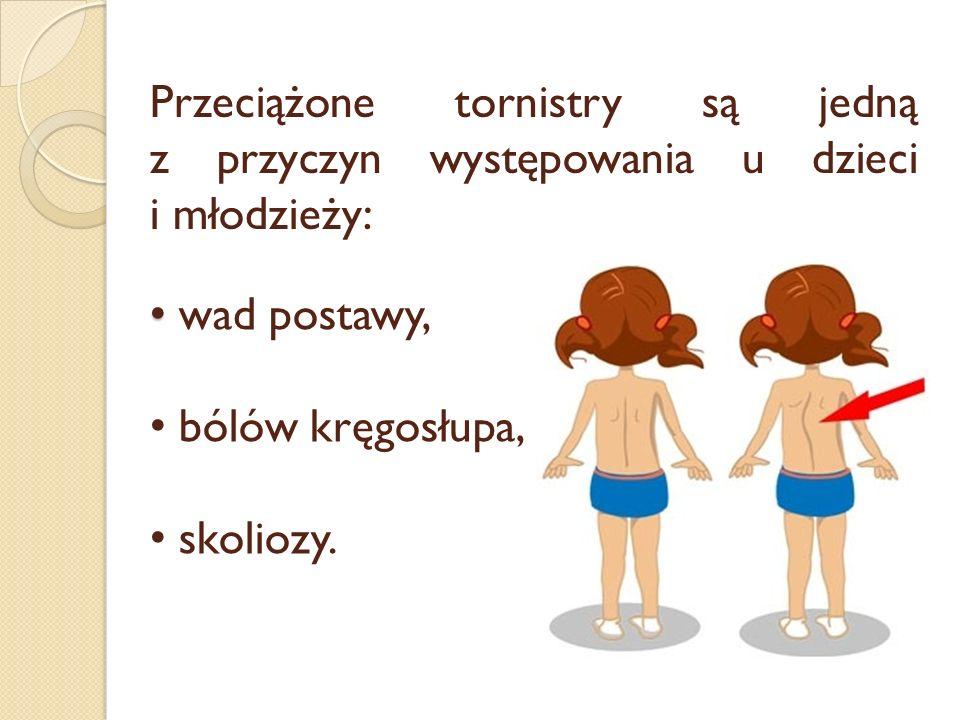 Przeciążone tornistry są jedną z przyczyn występowania u dzieci i młodzieży: wad postawy, bólów kręgosłupa, skoliozy.