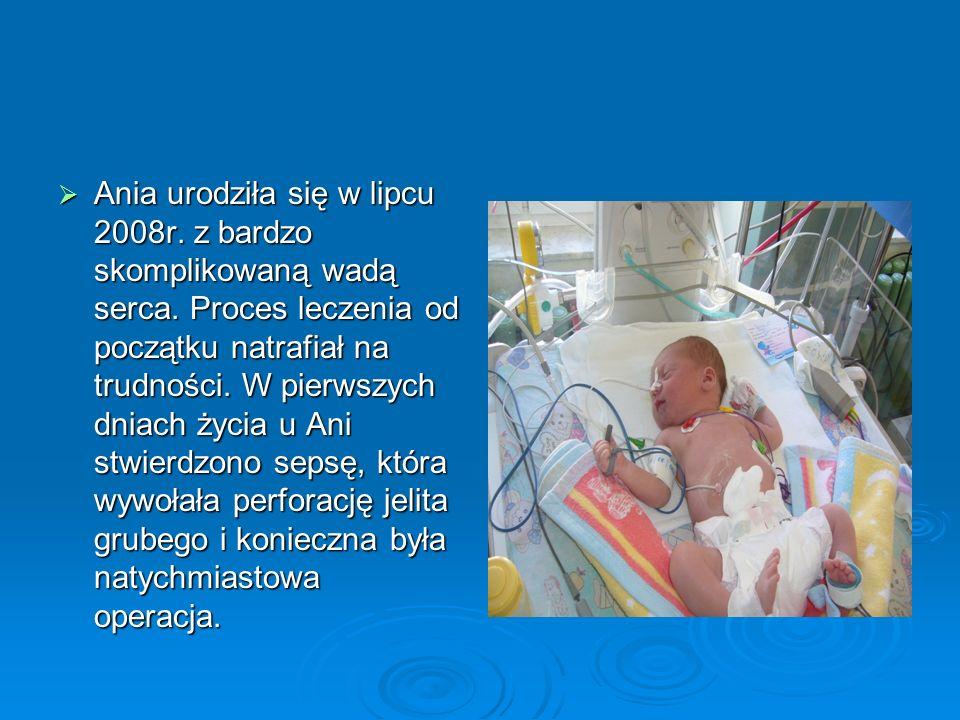 Ania urodziła się w lipcu 2008r.z bardzo skomplikowaną wadą serca.