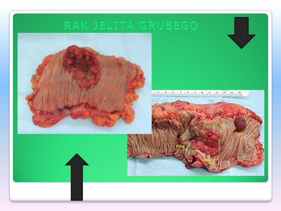 Profilaktyka dietetyczna Wskazane jest również zastępowanie potraw pieczonych na ruszcie i smażonych - produktami gotowanymi w wodzie lub na parze.
