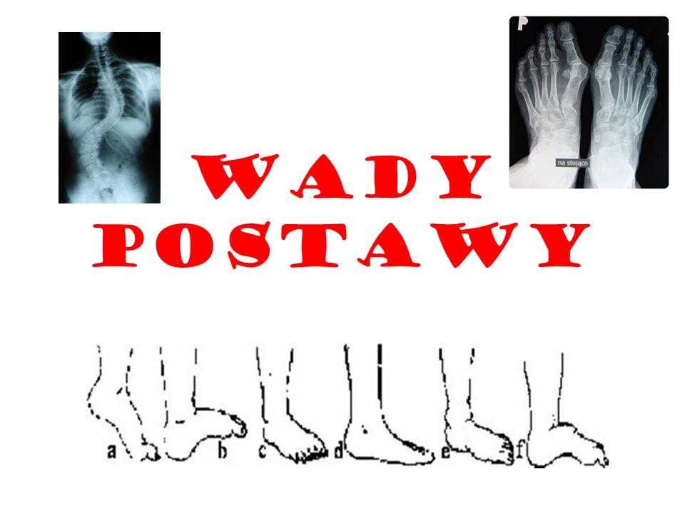 Wada postawy - wszelkie odstępstwa od prawidłowej postawy Wyróżniamy: skoliozę (boczne skrzywienie kręgosłupa), kifozę (plecy okrągłe), lordozę (plecy wklęsłe), plecy płaskie, plecy okrągło-wklęsłe, stopę szpotawą, stopę koślawą, stopę końsko-szpotawą, płaskostopie, kolana szpotawe, kolana koślawe.