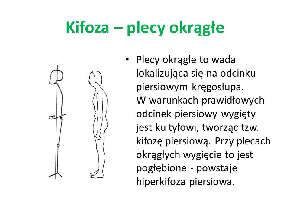 Kifoza – plecy okrągłe Plecy okrągłe to wada lokalizująca się na odcinku piersiowym kręgosłupa. W warunkach prawidłowych odcinek piersiowy wygięty jes