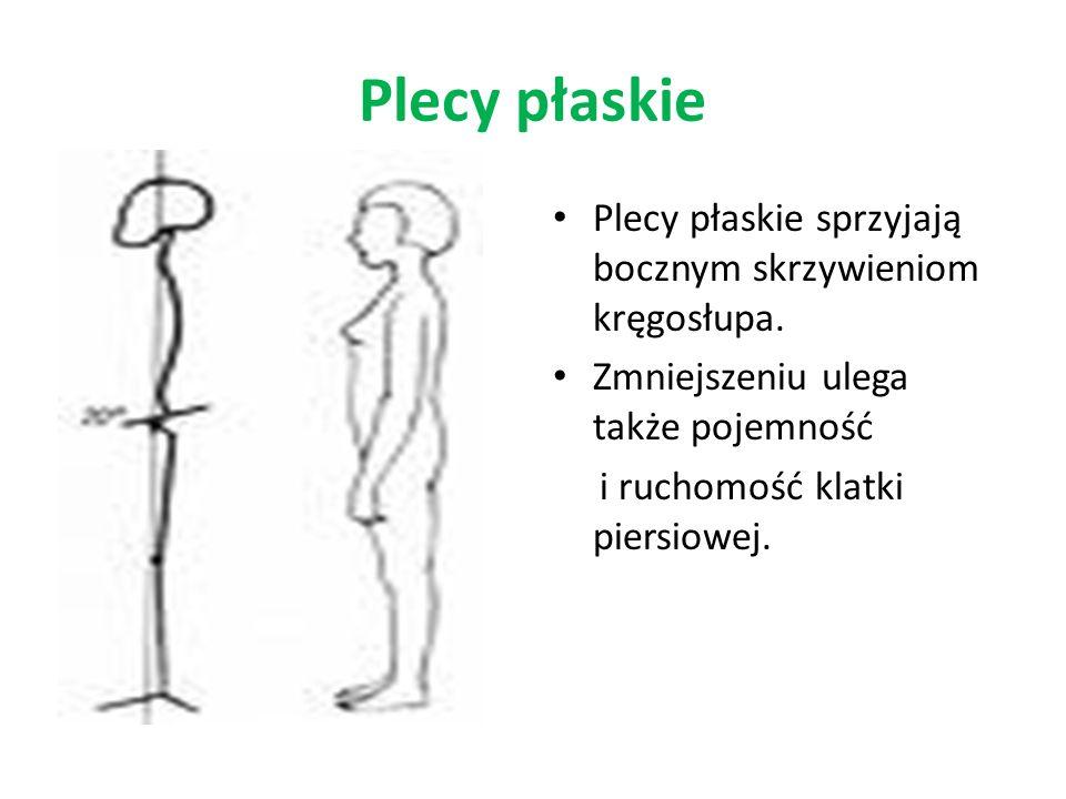 Plecy płaskie Plecy płaskie sprzyjają bocznym skrzywieniom kręgosłupa. Zmniejszeniu ulega także pojemność i ruchomość klatki piersiowej.