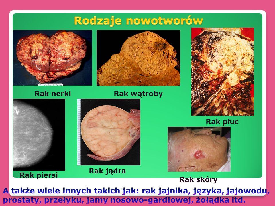 Rak nerkiRak wątroby Rak płuc Rak piersi Rak jądra Rak skóry