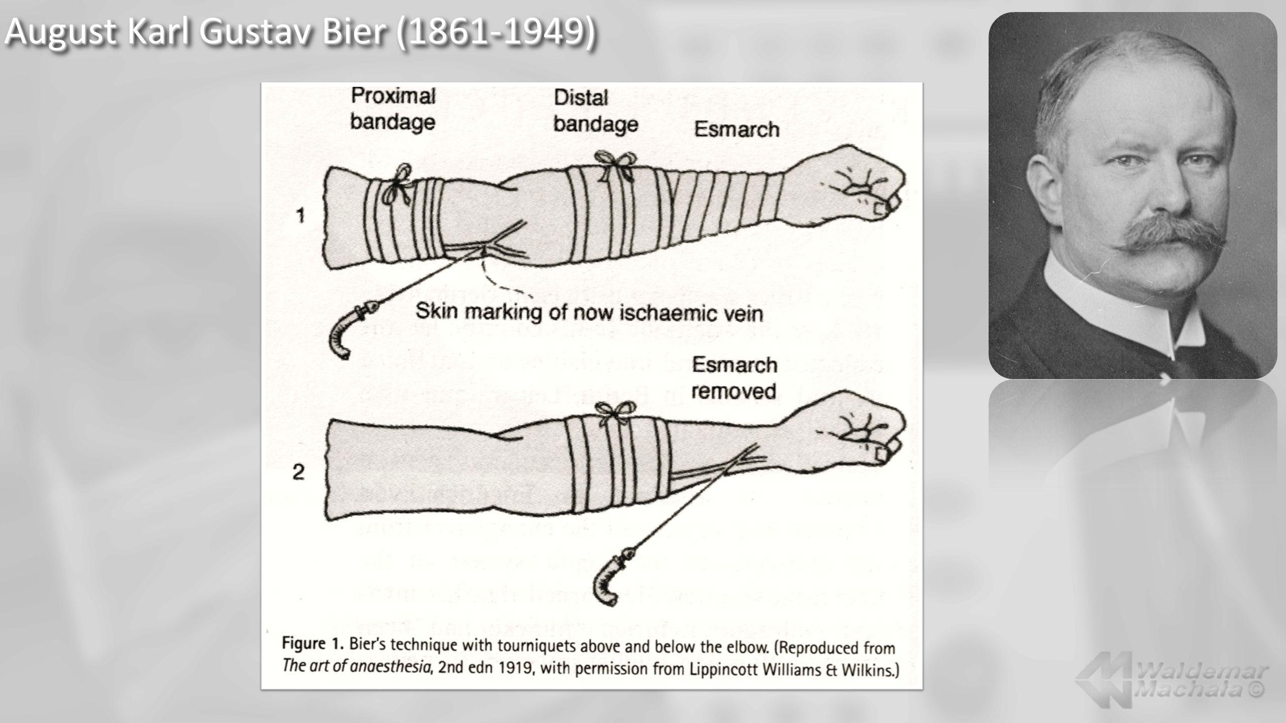 Autor nowych technik opracowania kikutów kończyn.Lider w przetaczaniu krwi.