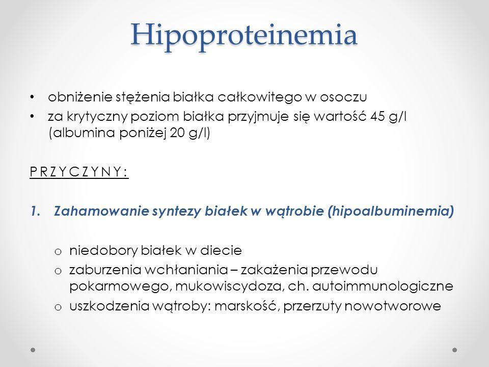 Hipoproteinemia obniżenie stężenia białka całkowitego w osoczu za krytyczny poziom białka przyjmuje się wartość 45 g/l (albumina poniżej 20 g/l) PRZYC