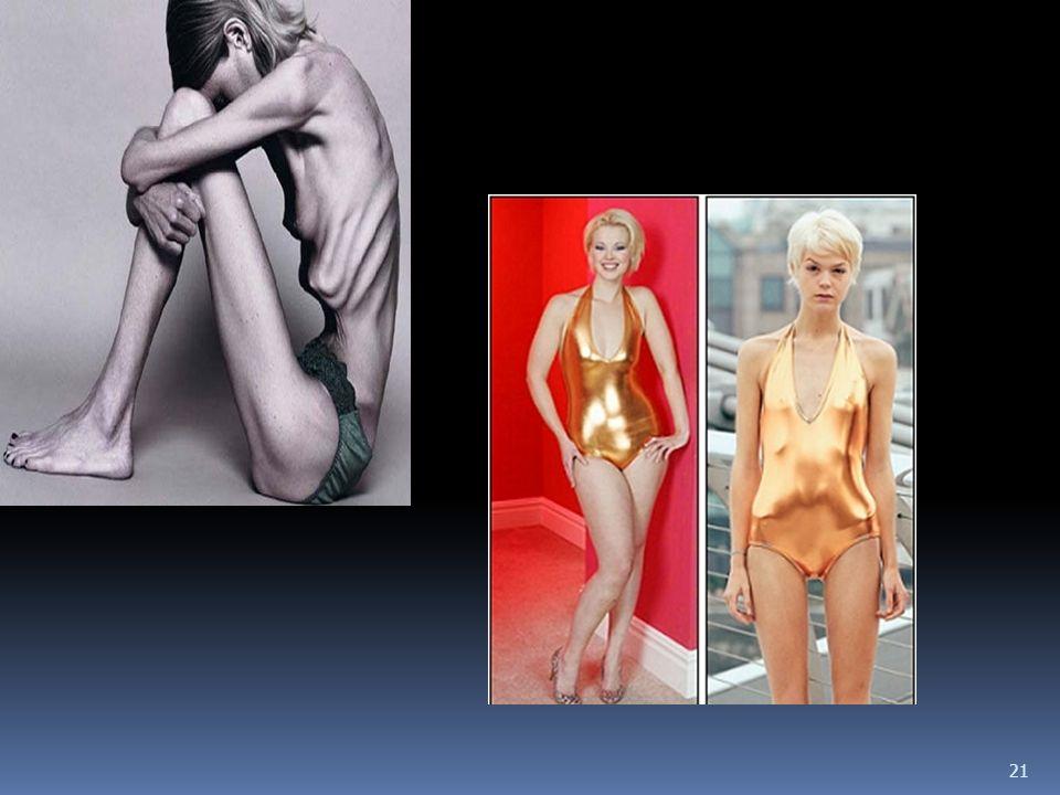 20 Jakie objawy fizyczne wskazują na anoreksję.