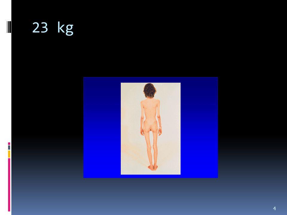 Zasadniczymi celami terapii AB są: o Ustanowienie przez chorą kontroli nad swoim jedzeniem i wagą na normalnym, akceptowanym społecznie poziomie o Radzenie sobie przez chorą ze swoimi problemami w inny sposób niż przez anoreksję o Odnowienie relacji z rodzinną na innym poziomie, niż relacja uwarunkowana sposobem jedzenia i wagą o Edukacja o objawach i możliwych przyczynach anoreksji o Edukacja o możliwych zwiastunach nawrotu choroby i sposobach radzenia sobie z nimi 44