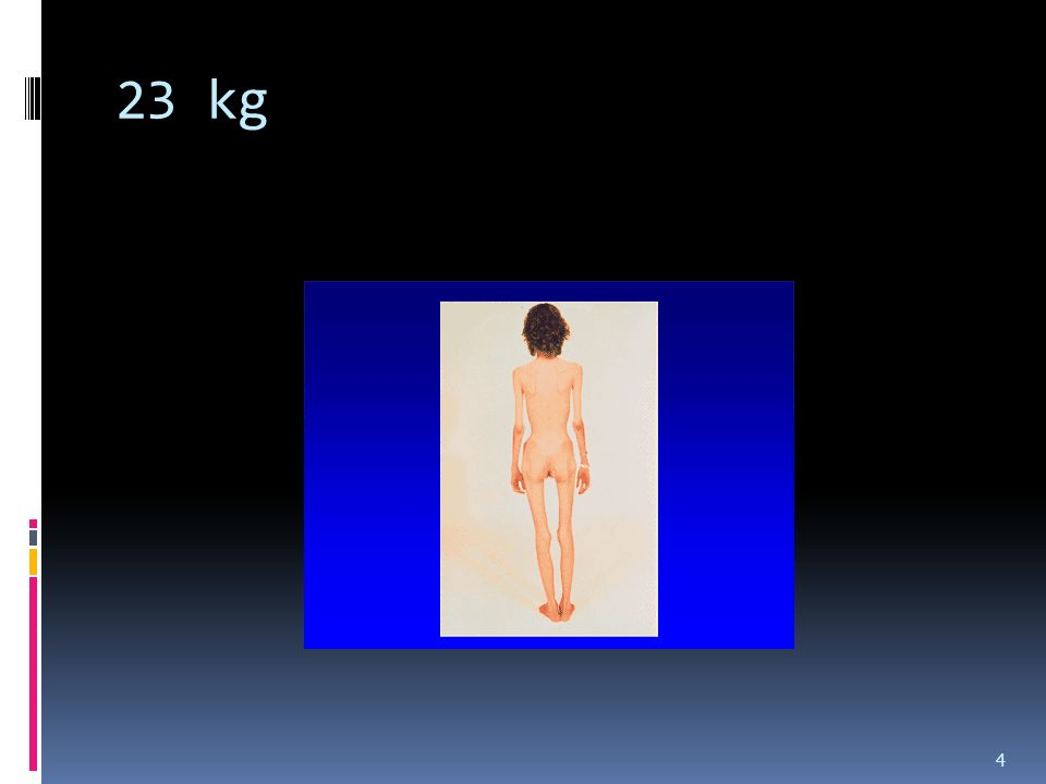 23 kg 4