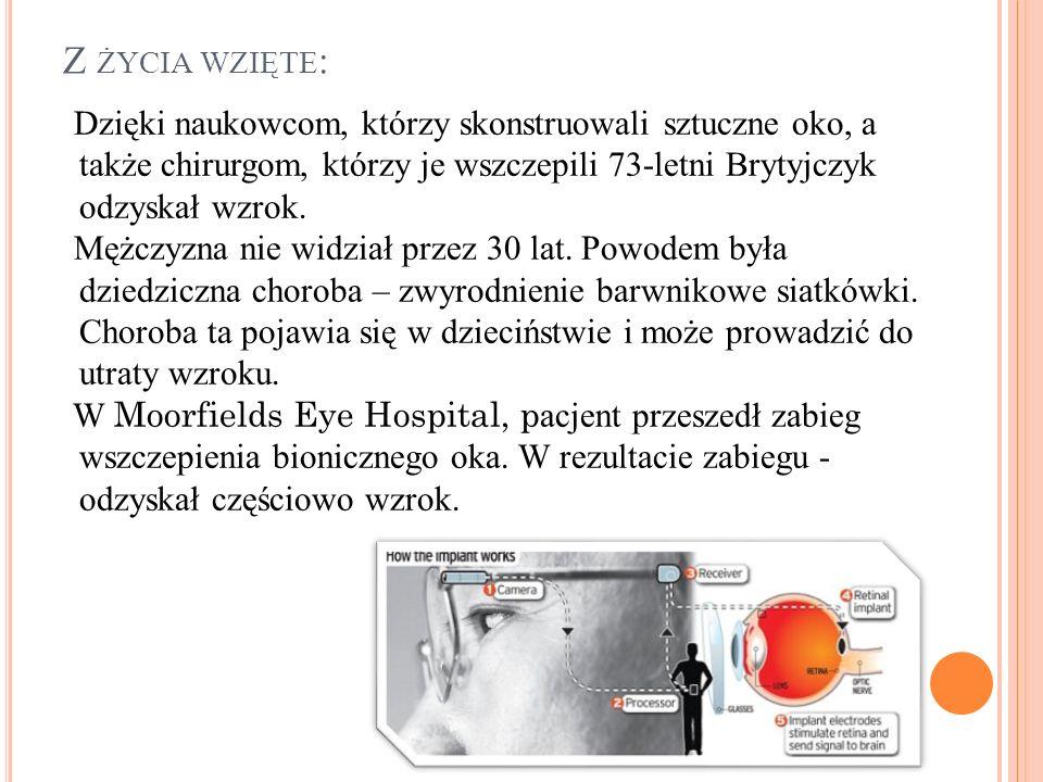Z ŻYCIA WZIĘTE : Dzięki naukowcom, którzy skonstruowali sztuczne oko, a także chirurgom, którzy je wszczepili 73-letni Brytyjczyk odzyskał wzrok. Mężc