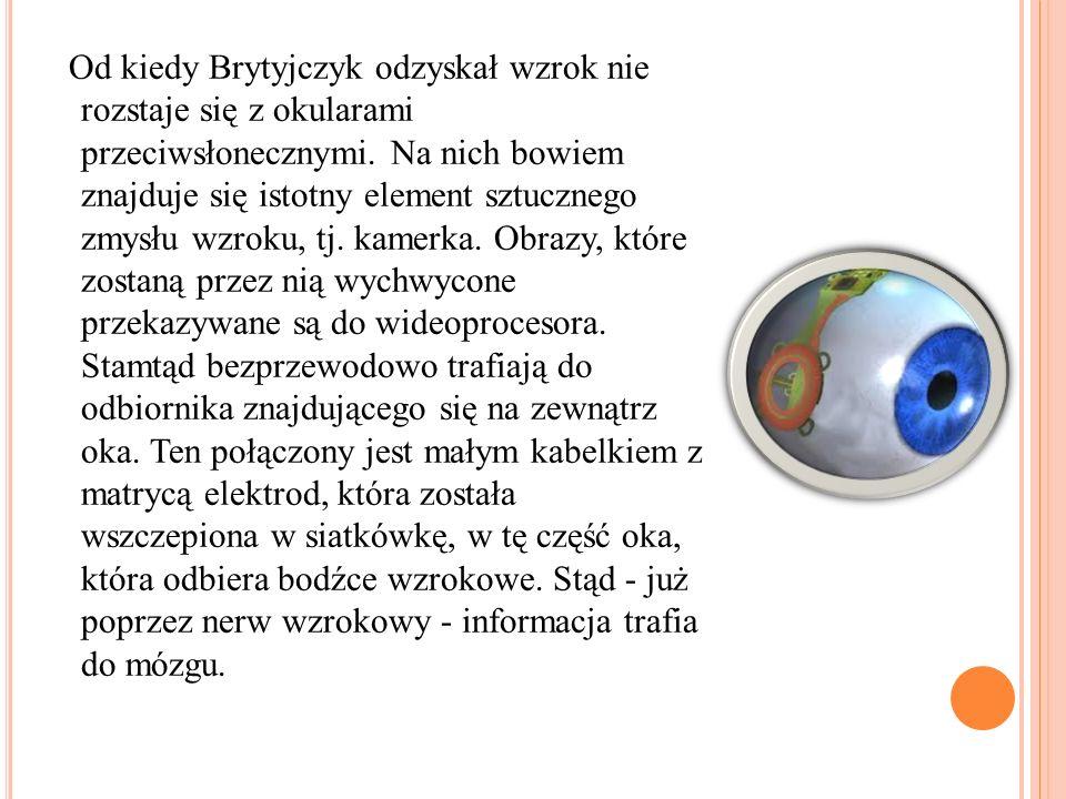 Od kiedy Brytyjczyk odzyskał wzrok nie rozstaje się z okularami przeciwsłonecznymi. Na nich bowiem znajduje się istotny element sztucznego zmysłu wzro