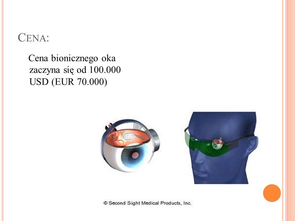 C ENA : Cena bionicznego oka zaczyna się od 100.000 USD (EUR 70.000)