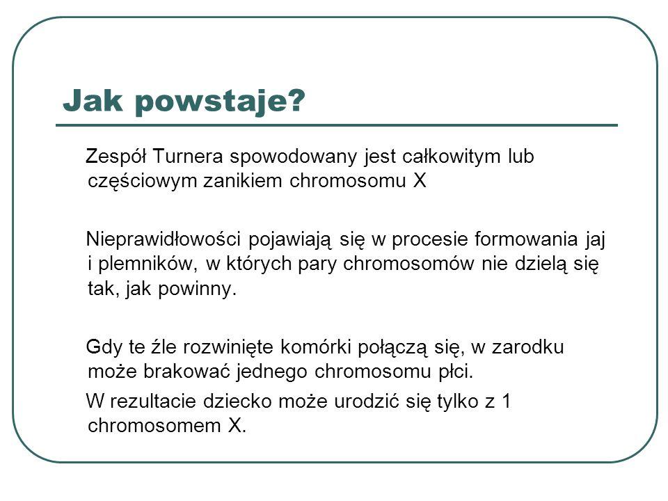 Jak powstaje? Zespół Turnera spowodowany jest całkowitym lub częściowym zanikiem chromosomu X Nieprawidłowości pojawiają się w procesie formowania jaj